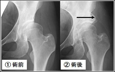 不全 股関節 形成 臼 蓋 中高年に多い股関節痛。その痛みは臼蓋形成不全かもしれません